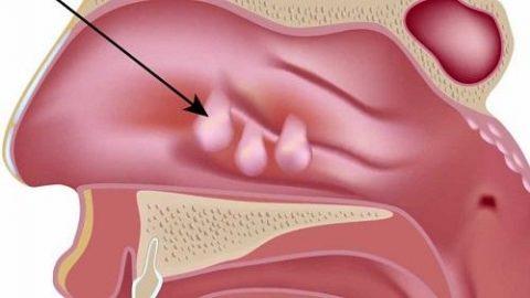 Nguyên nhân và triệu chứng của bệnh polyp mũi