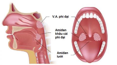 Phì đại VA có cần nạo không? triệu chứng của bệnh như thế nào
