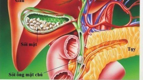 Cắt túi mật có ảnh hưởng đến sức khỏe không?