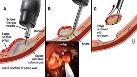 Hình ảnh bệnh polyp đại trực tràng