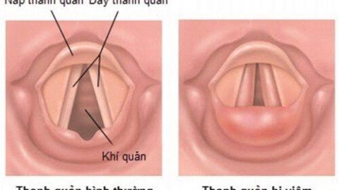 Nguyên nhân và cách điều trị viêm dây thanh quản