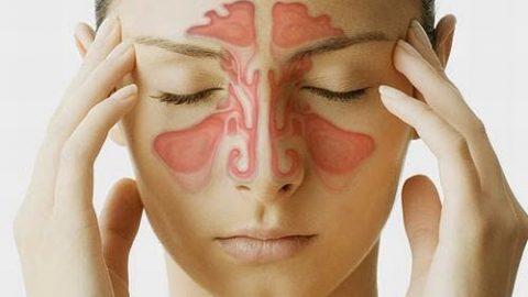 Những biến chứng của bệnh viêm xoang