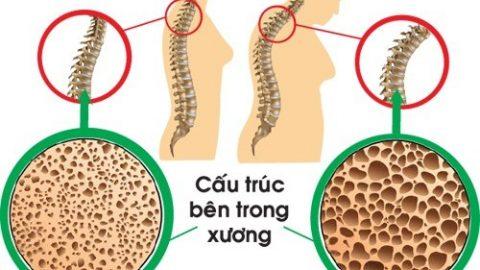 Bệnh loãng xương là gì? gây ra những hậu quả