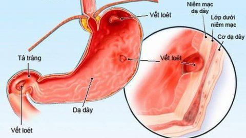 Polyp dạ dày phải làm sao? các bệnh lý khác