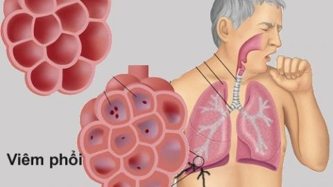 Viêm phổi nguyên nhân do đâu?bảo vệ sức khỏe cho trẻ