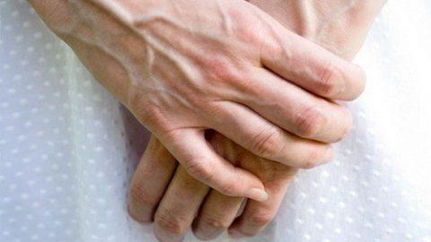 Suy giãn tĩnh mạch tay là gì? sinh hoạt hàng ngày