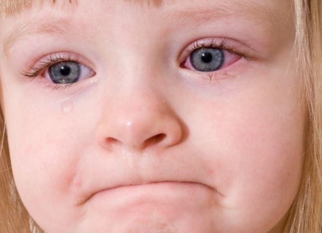 Viêm bờ mi ở trẻ cũng là nguyên nhân khiến trẻ nháy mắt liên tục