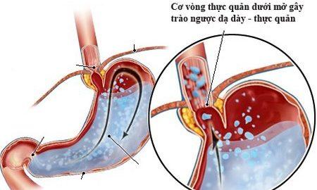 Triệu chứng trào ngược dạ dày điển hình nhất