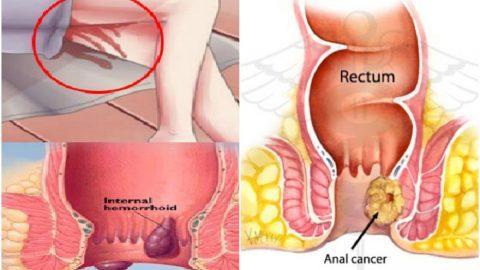 Hình ảnh ung thư hậu môn biến chứng nguy hiểm
