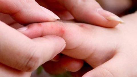 Các biểu hiện của bệnh tay chân miệng