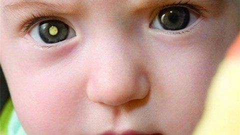 Các dấu hiệu bị ung thư mắt tiến triển tới giai đoạn nặng