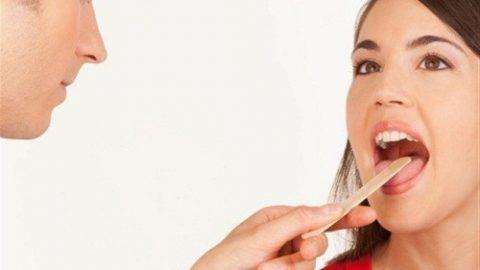 Đau họng vào buổi tối là triệu chứng của bệnh gì?