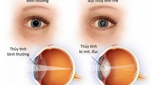 Đừng để bệnh đục thủy tinh thể gây mù lòa