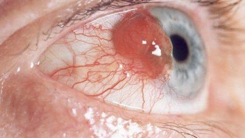 Hình ảnh ung thư mắt biến chứng nguy hiểm