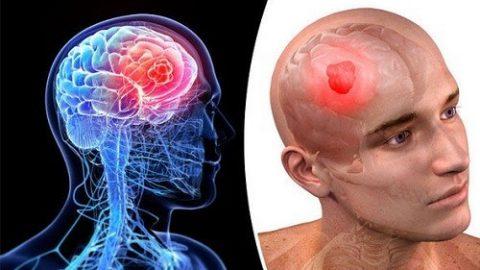 Hình ảnh ung thư não biến chứng nguy hiểm