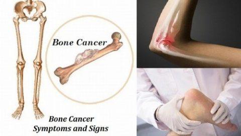 Hình ảnh ung thư xương có mức độ nguy hiểm cao
