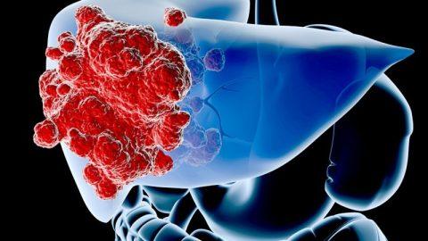 Khám và điều trị ung thư gan tại Bệnh viện Thu Cúc