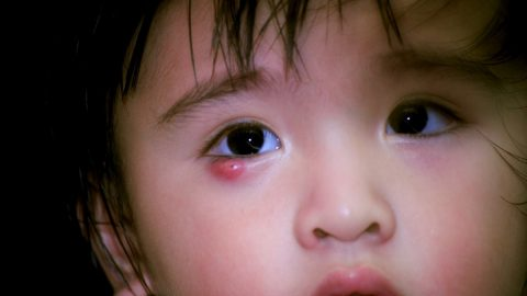 Những điều cần biết về bệnh lẹo mắt