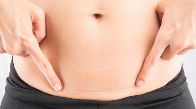 Mổ thai bao lâu có kinh lại là câu hỏi băn khoăn của nhiều chị em vừa thực hiện chỉ định này của bác sĩ