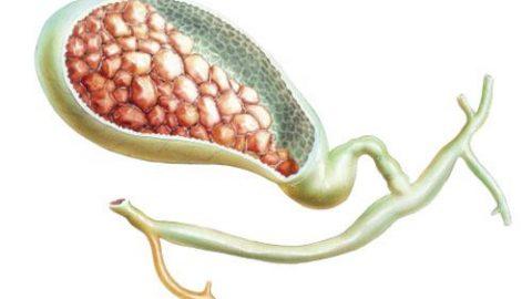 Nguyên nhân gây sỏi mật có thể do bất thường trong quá trình