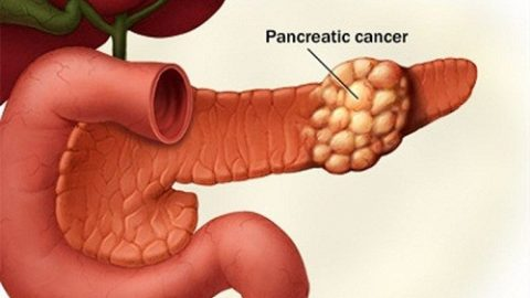 Nguyên nhân ung thư tuyến tụy gây tử vong nhanh chóng