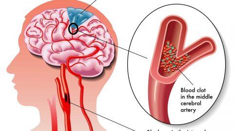 Tai biến mạch máu não và cách điều trị