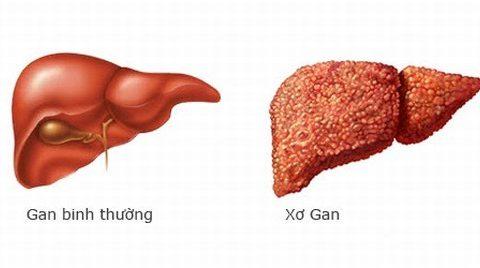 Tổng quan về bệnh xơ gan tổn thương gan nghiêm trọng