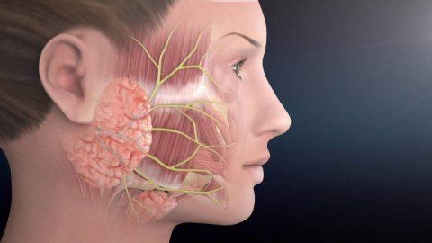 4 thông tin về liệt dây thần kinh số 3 cần biết