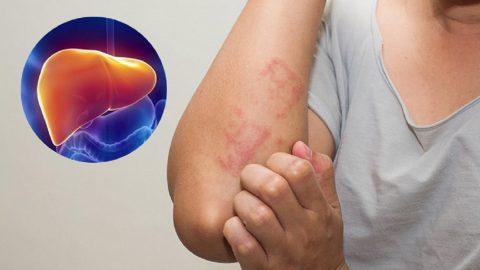Rối loạn chức năng gan làm sao để chữa trị?