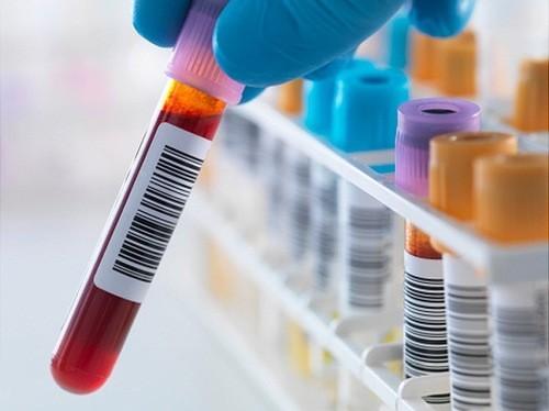 Anti HCV âm tính là gì, những điều cần lưu ý