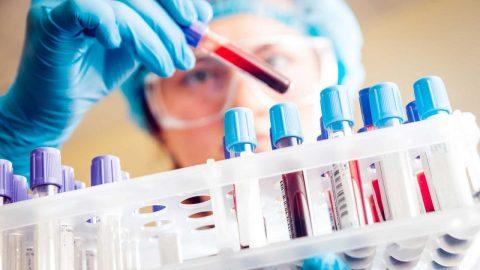 Anti HCV âm tính là gì, thông tin cần thiết về xét nghiệm