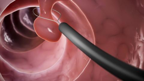 Bà bầu bị polyp cổ tử cung có sinh thường được không?