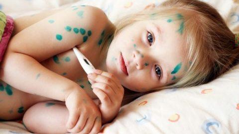 Bệnh thủy đậu ở trẻ em khám và điều trị sớm