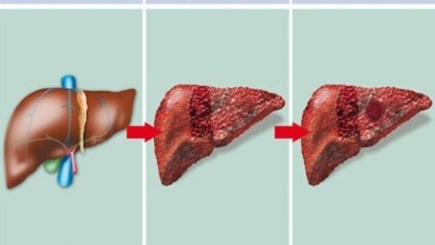 Các xét nghiệm chẩn đoán xơ gan