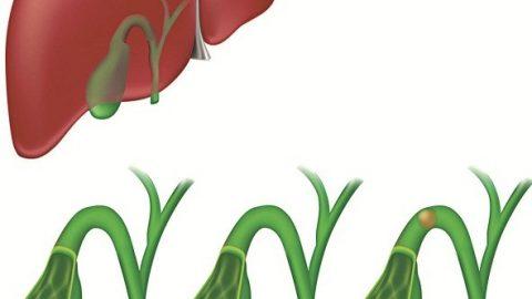 Cách điều trị viêm túi mật cấp Nguyên nhân gây viêm túi mật cấp