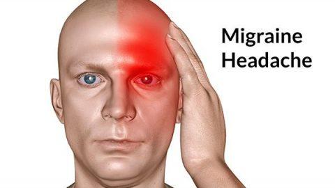Cảnh giác với chứng đau nửa đầu nhiều người đang mắc phải