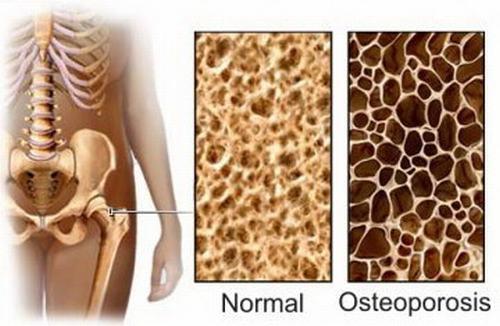 Loãng xương là tình trạng giảm sút sức mạnh của xương bao gồm khối lượng, mật độ xương