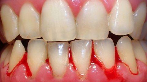 Chảy máu chân răng có nguy hiểm không?