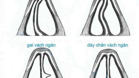 Chỉnh hình vách ngăn mũi được thực hiện như thế nào?