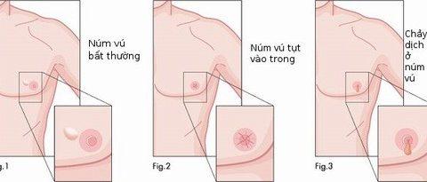 Dấu hiệu ung thư vú ở nam giới
