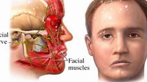 Điều trị bệnh liệt dây thần kinh số 7 ngoại vi