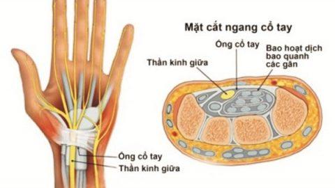 Điều trị hội chứng ống cổ tay: không thể chậm trễ