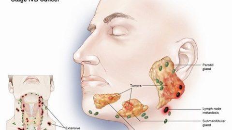 Hình ảnh ung thư tuyến nước bọt