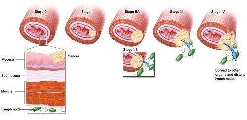 Hình ảnh ung thư vòm họng qua các giai đoạn