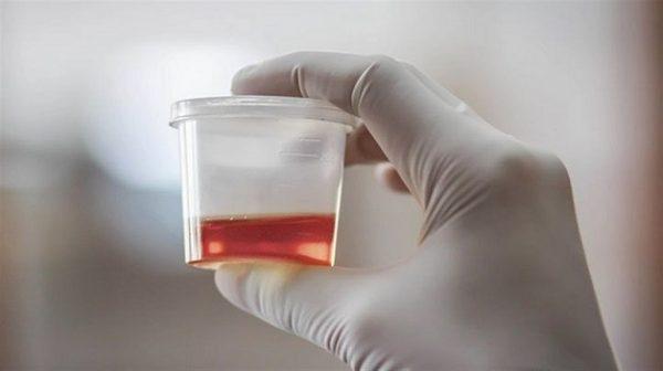 hồng cầu trong nước tiểu là gì?