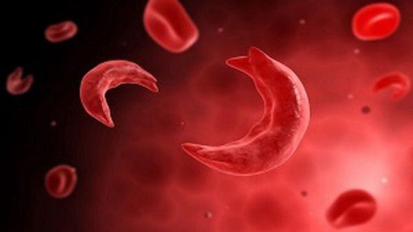 hồng cầu trong nước tiểu cảnh báo bệnh hồng cầu hình liềm