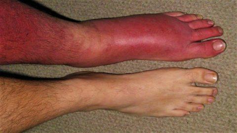 Khám và điều trị bệnh viêm mô mềm dưới da