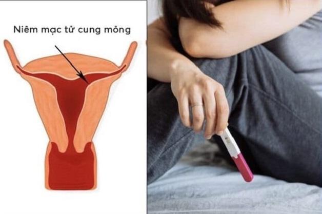 Niêm mạc tử cung dày hay mỏng đều có những ảnh hưởng nhất định tới khả năng thụ thai ở chị em phụ nữ
