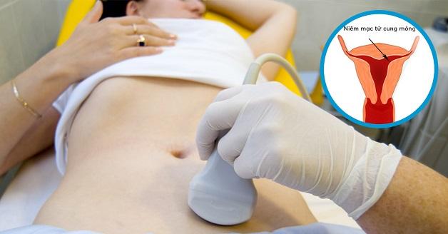Nội mạc tử cung mỏng chỉ được xác định chính xác thông qua kết quả siêu âm