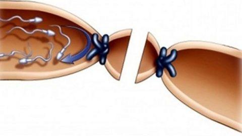 Triệu chứng tắc ống dẫn tinh nhiều nam giới quan tâm
